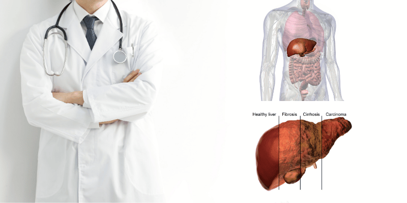 ketosis in liver